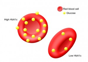 Check out how much glucose is stuck to the red blood cell after a few months